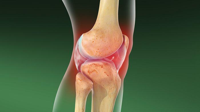 Ejercicio para tratar artrosis de rodilla