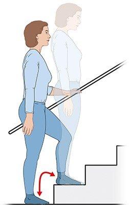 Ejercicio en la escalera para artrosis en la rodilla