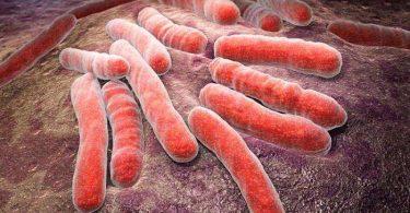 Cómo tratar la erisipela y sus causas