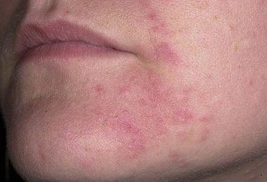 Reacción alérgica en el rostro por alergia al sol