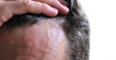 Síntomas de dermatitis seborreica en la frente