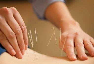 mujer haciendo acupuntura
