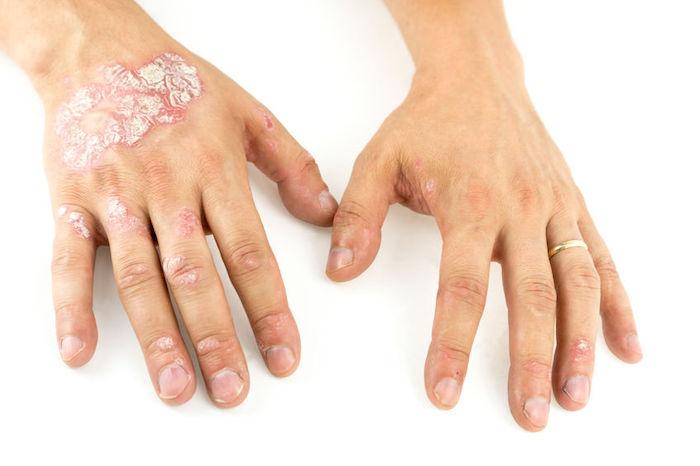 alimentos que debes evitar si tienes eczema