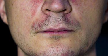 Causas de la dermatitis perioral