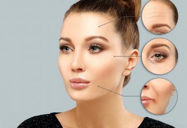 5 efectos secundarios del botox que debes conocer