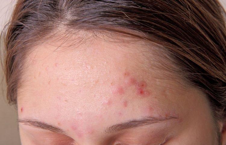 Una mujer que tiene piel mixta y formación de acné