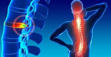 causas y síntomas de las hernias de sico