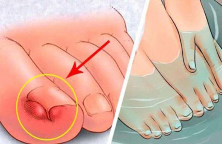 Aprende a cuidar el pie diabético