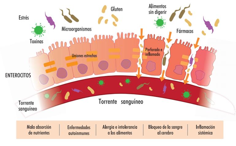 intestino permeable