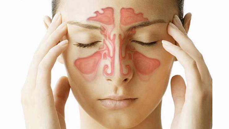 infección sinusal