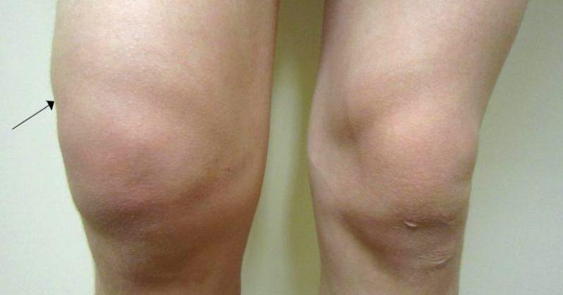 edema en la fibromialgia