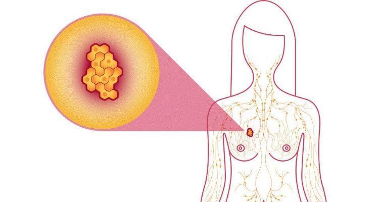 riesgo de cáncer de seno