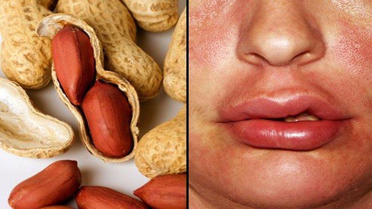 alergia alimentaria severa