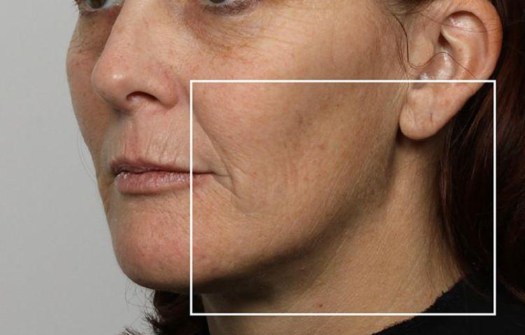 10 beneficios del retinol que la mayoría de las mujeres pasan por alto