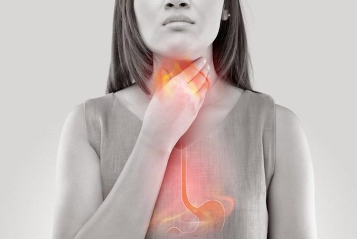 reflujo gastroesofágico ERGE
