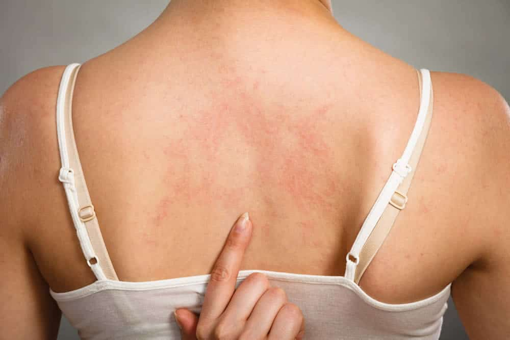 Cómo afecta la hepatitis C nuestro cuerpo