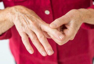 Alimentos que no deben comer las personas con artritis