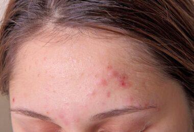 Mujer con acné en la frente