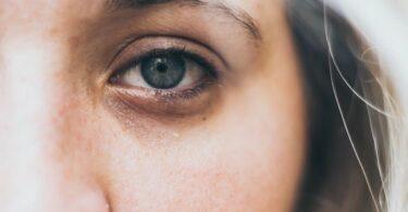 Efectos del estrés en el rostro