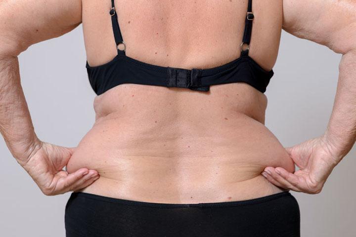 eliminar la grasa lumbar