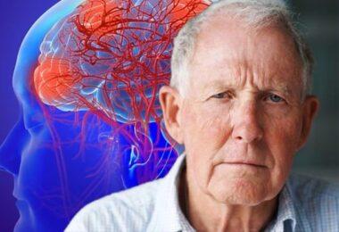 Medicamentos que causa demencia y pérdida de memoria