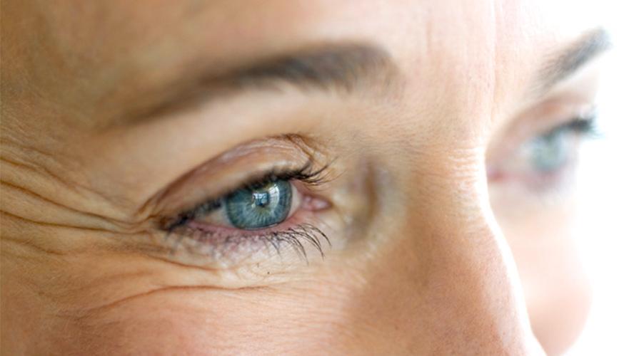 Arrugas en ojos - licopeno efectos prevenir deterioro ppor la edad