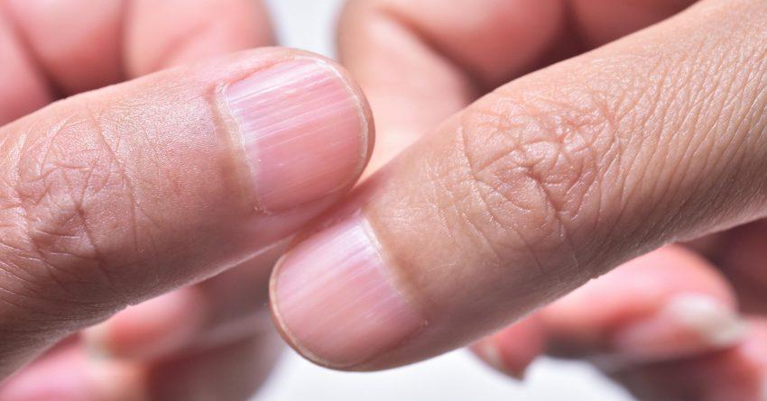 Crestas en las uñas