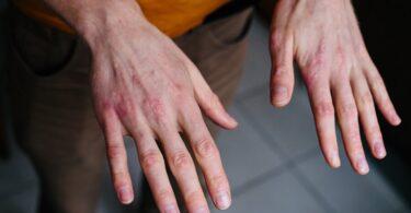 problemas lavarse las manos de forma incorrecta