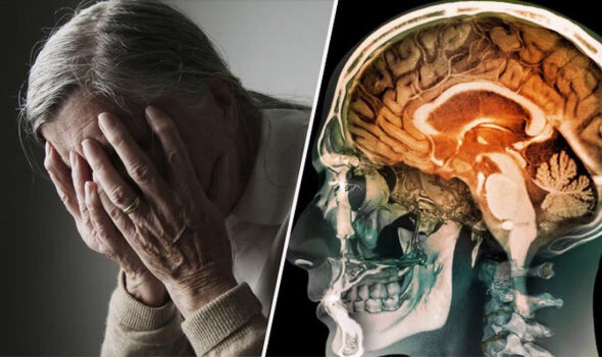 El sedentarismo y el envejecimiento cerebral