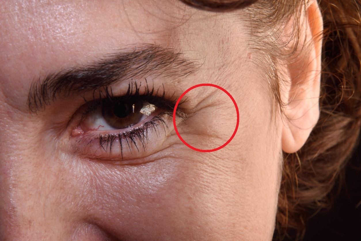 Aloe vera contra las arrugas y el acné