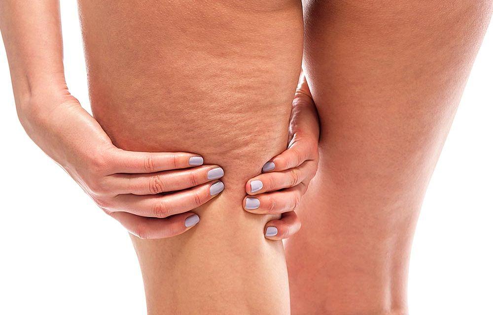 Realizando un masaje casero para la celulitis