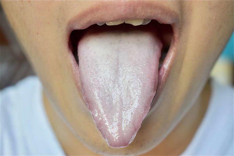Persona con la lengua pálida por deficiencia de vitamina B12