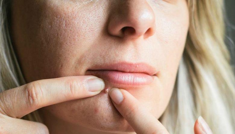 Mujer con problemas en la piel a causa del estrés crónico