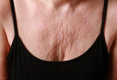 Cómo prevenir las arrugas en el pecho