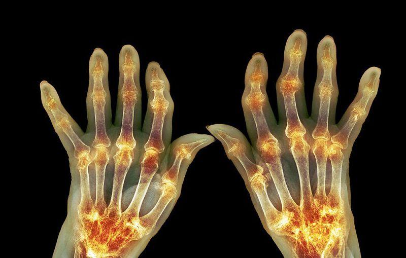 Síntomas de enfermedad autoinmune